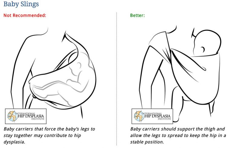 how to prevent hip dysplasia in babies