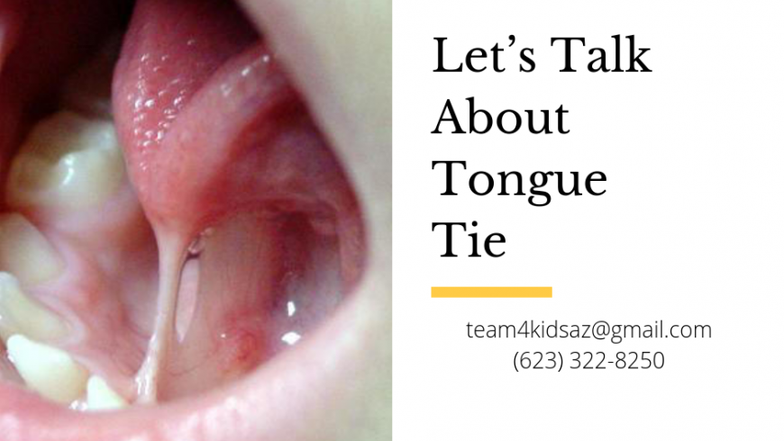 Let's Talk About Tongue Tie